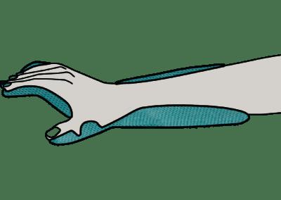 Reusable shell for paresis (hand & wrist & thumb) – emergency use